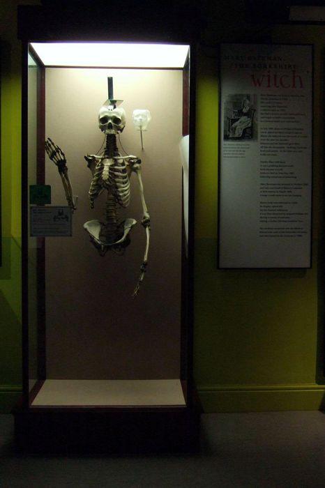 Ο σκελετός της Mary Bateman, όπως εκτίθεται στο Ιατρικό Μουσείο Thackray, στο Leeds