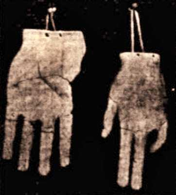 Ανάθημα χεριών αφιερωμένο στον Ασκληπιό