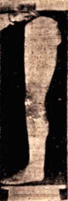 Ανάθημα γυναικείου ποδιού αφιερωμένο στον Ασκληπιό